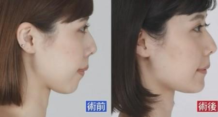 ザ・ノンフィクション 有村藍里の整形手術に密着 有村藍里の整形前、整形後の顔の比較 横からの画像
