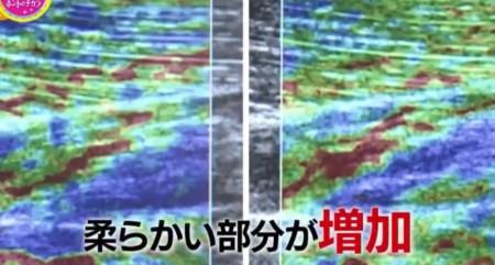 東洋医学のホントのチカラ ~最新科学で迫る鍼灸(しんきゅう)の秘密~ 鍼灸効果を科学的検証