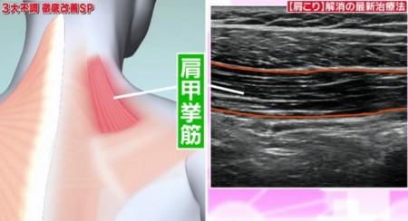 たけしの家庭の医学で紹介!治療中にもコリが消える?肩こり解消の最先端治療法ハイドロリリースとは?治療費用は?どこで受けられる?肩甲挙筋のエコー画像と筋肉の位置