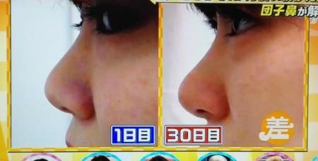 この差って何?からノーズクリップを1ヶ月続けると団子鼻の鼻筋はキレイに通る?番組スタッフがTVでガチ検証 ビフォーアフター画像