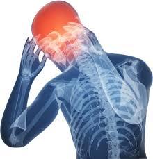 運動誘発性頭痛の原因と対処法。運動しなくても起こる理由。
