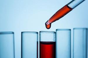 若くして男性ホルモンのテストステロンの分泌量が低いのは病気が原因かも 血液検査