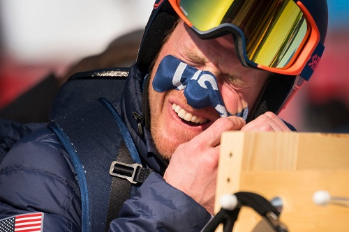 トム・リジディー 平昌オリンピック 顔のテープを剥がす
