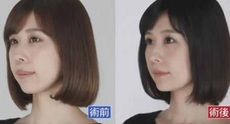 ザ・ノンフィクション 有村藍里の整形手術に密着 有村藍里の整形前、整形後の顔の比較