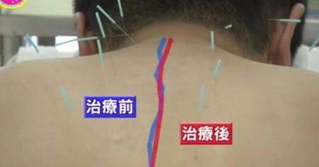 東洋医学のホントのチカラ ~最新科学で迫る鍼灸(しんきゅう)の秘密~ 鍼灸治療前後で背骨の歪みが緩和