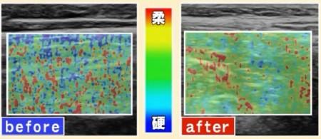 金スマ紹介「動かないゼロトレ」のやり方。効果を化学的に検証 エラストグラフィー