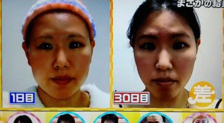 この差って何?から美顔ローラー&二重マッサージを1ヶ月続けると効果は?一重まぶたが二重に?ビフォーアフターの顔