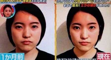この差って何?から一人で出来る小顔マッサージを1ヶ月続けると効果は?整形級のそのやり方は?ビフォーアフター画像