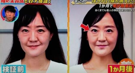 この差って何?から「ほうれい線・シワ・シミ」を消すやり方ガイド。ビフォーアフター画像01