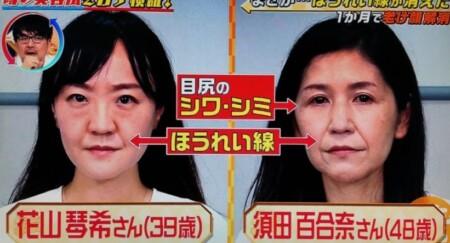 この差って何?で紹介「ほうれい線・シワ・シミ」を消すやり方ガイド。ビフォー画像