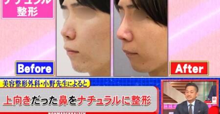 ホンマでっか 最新美容整形&薄毛治療&歯科矯正SP ナチュラル整形 横顔