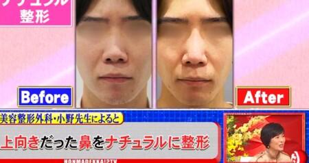 ホンマでっか 最新美容整形&薄毛治療&歯科矯正SP ナチュラル整形