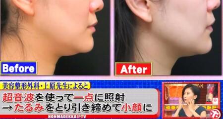 ホンマでっか 最新美容整形&薄毛治療&歯科矯正SP ハイフ