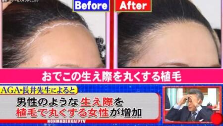 ホンマでっか 最新美容整形&薄毛治療&歯科矯正SP 女性の生え際植毛