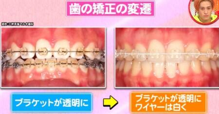 ホンマでっか 最新美容整形&薄毛治療&歯科矯正SP 目立たない歯列矯正 白ワイヤー
