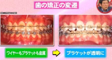ホンマでっか 最新美容整形&薄毛治療&歯科矯正SP 目立たない歯列矯正
