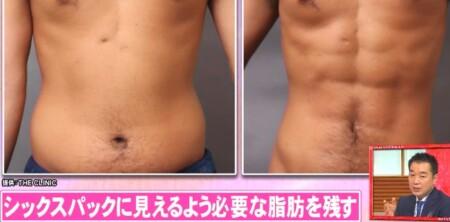 ホンマでっか 最新美容整形&薄毛治療&歯科矯正SP 脂肪吸引でシックスパック