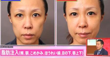 ホンマでっか 最新美容整形&薄毛治療&歯科矯正SP 脂肪吸引・注入で顔の若返り