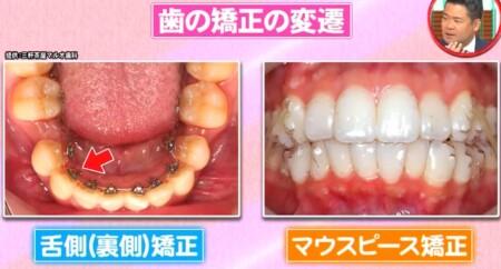 ホンマでっか 最新美容整形&薄毛治療&歯科矯正SP 舌側矯正&マウスピース矯正