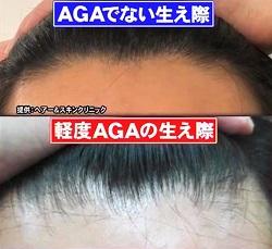ホンマでっか 最新美容整形&薄毛治療&歯科矯正SP 軽度AGAの生え際比較