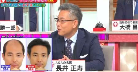 ホンマでっか 最新美容整形&薄毛治療&歯科矯正SP 長井先生のビフォーアフター画像