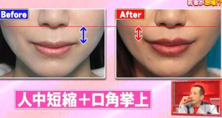 ホンマでっか 最新美容整形&薄毛治療&歯科矯正SP 鼻の下を1cmに