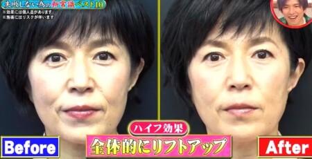 ホンマでっか 磯野貴理子のハイフ体験とその効果 ビフォーアフター画像