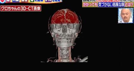主治医が見つかる診療所 芸能人人間ドックSP クロちゃんの健康診断 血管3D-CT画像