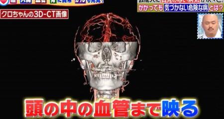 主治医が見つかる診療所 芸能人人間ドックSP クロちゃんの健康診断 頭蓋骨3D-CT画像