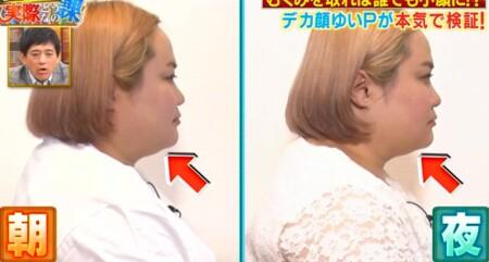 それって実際どうなの課 顔のむくみを取る方法を試しまくったら即効小顔矯正できる?1日目朝晩の変化 横から