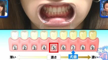 ジロジロ有吉SP 喫煙者ヒコロヒー&薄幸の歯のホワイトニング効果比較。ヒコロヒーの施術前の歯の白さ