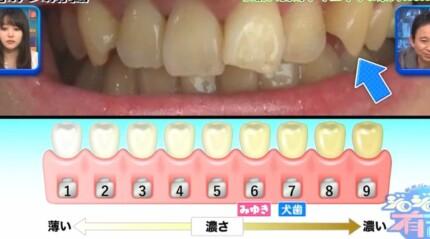 ジロジロ有吉SP 喫煙者ヒコロヒー&薄幸の歯のホワイトニング効果比較。薄幸の施術前の歯の白さ
