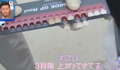 ジロジロ有吉SP 喫煙者ヒコロヒー&薄幸の歯のホワイトニング効果比較。1回の施術で歯の白さが3段階アップ