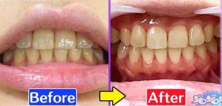 ジロジロ有吉SP 喫煙者ヒコロヒー&薄幸の歯のホワイトニング効果比較。1週間後のヒコロヒーのビフォーアフター画像