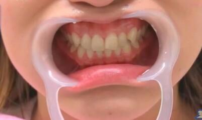 ジロジロ有吉SP 喫煙者ヒコロヒー&薄幸の歯のホワイトニング効果比較。3回施術後の薄幸の歯の白さ