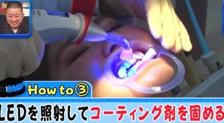 ジロジロ有吉SP 喫煙者ヒコロヒー&薄幸の歯のホワイトニング効果比較。LED照射