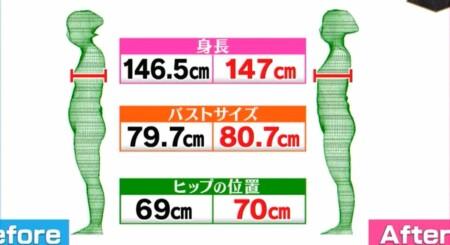 NHKあさイチ ファシアゆるゆる体操でバストアップ、ヒップアップ 2段階のファシアケアで腰痛・膝の痛み改善の詳しいやり方、新常識は?