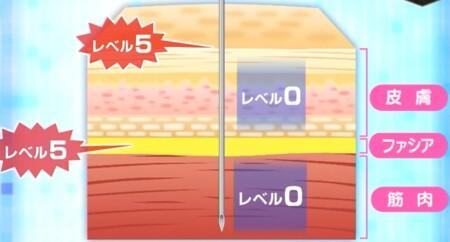 NHKあさイチ 痛みの原因は筋肉では無くファシア 2段階のファシアケアで腰痛・膝の痛み改善の詳しいやり方、新常識は?