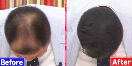 ホンマでっか 薄毛隠しスプレーCAX(カックス)をブラマヨ小杉が体験!その衝撃の効果は?頭頂部のビフォーアフター