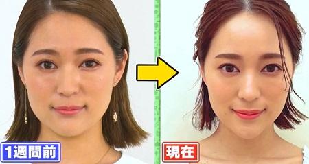 世界一受けたい授業 書籍「奇跡の頭ほぐし」顔3大たるみの原因は頭皮のコリ?解消するマッサージのビフォーアフター