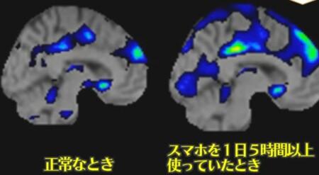 NHKあさイチ だらだらスマホをやめるには?スマホの長時間利用で脳の認知機能が下がる