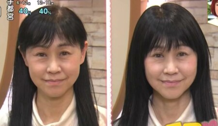 NHKあさイチ 女性の薄毛の原因と対策 薄毛専門美容院の髪型テクニック ウィッグで簡単に薄毛対策