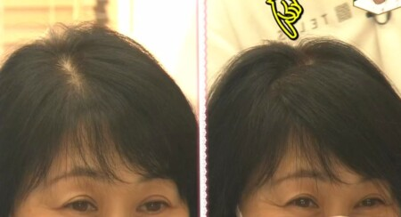NHKあさイチ 女性の薄毛の原因と対策 薄毛専門美容院の髪型テクニック ジグザグ分け目消し