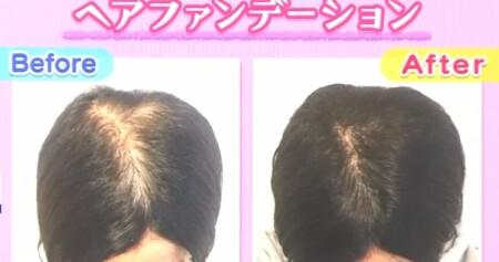 NHKあさイチ 女性の薄毛の原因と対策 薄毛専門美容院の髪型テクニック ヘアファンデーションで薄毛隠し