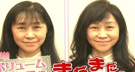 NHKあさイチ 女性の薄毛の原因と対策 薄毛治療&食べ物や薄毛専門美容院の髪型テクニック