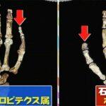 チコちゃんに叱られる 親指が太いのはなぜ?石を使う前後の親指の比較